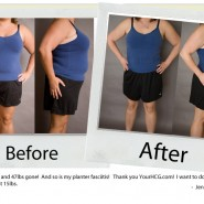 your-hcg-before-after_jenny-m